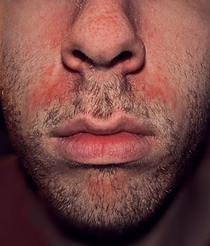 long duration application of tinea cream